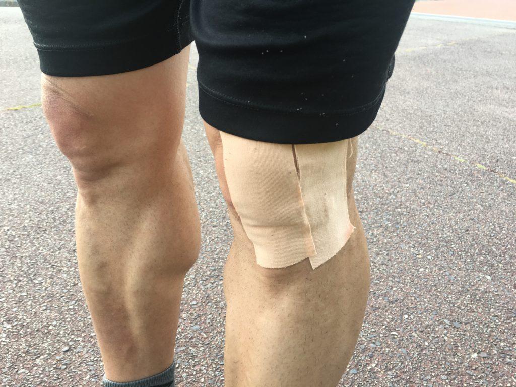 af4ca306de ランナー膝、腸脛靭帯炎の原因。治療と対策。自己対策は症状が長引く可能性が、